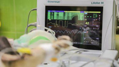 Photo of Żuromin: Do szpitala trafił nowy kardiomonitor. To dar od miasta